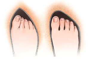 Bunions Orthotics